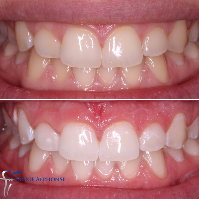Whitening | Oatlands Dental