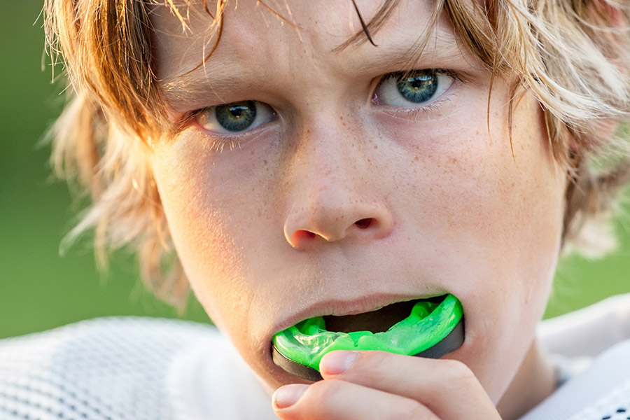 mouthguards-services