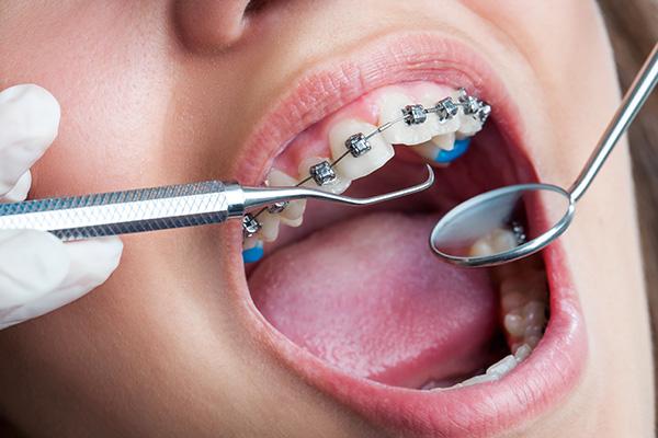 Orthodontics (Braces)