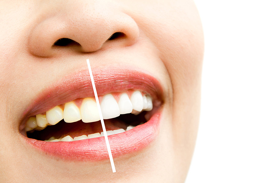 tooth-whitening-services